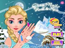 Elsa Tratament la Maini